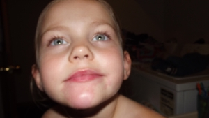 She broke out in an allergic reaction on her chin and arm!!!!